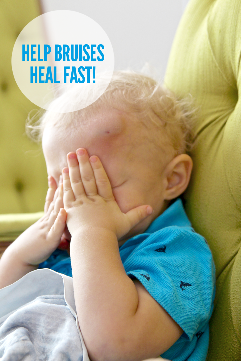 How to hurry up healing of all those toddler Bumps & Bruises vi a@PagingSupermom